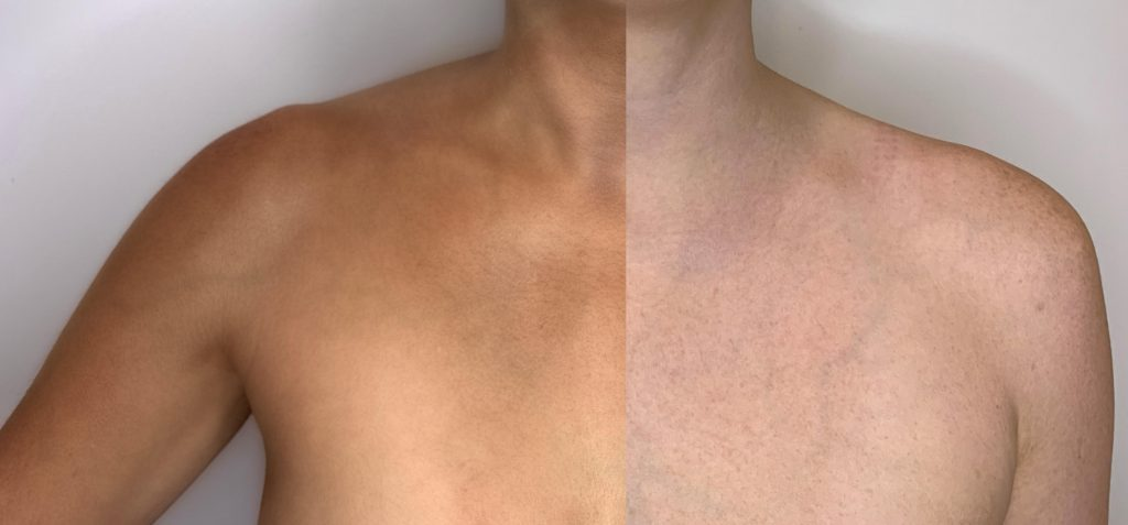 Spray-tan-before-and-after-Medium-solution