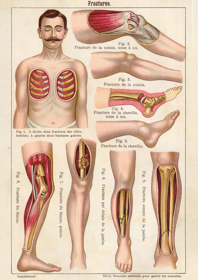 French Medical Chart of Fracture - Kuriosis Vintage Prints
