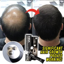 Scalp Intense™ Roll-on Hair Growth Serum