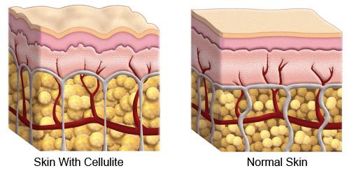 The Secret About Cellulite Is No Secret At All