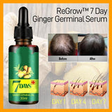 7 Day Ginger Germinal Serum - ZZgeeks