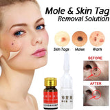 Skin Tag Removal - ZZgeeks