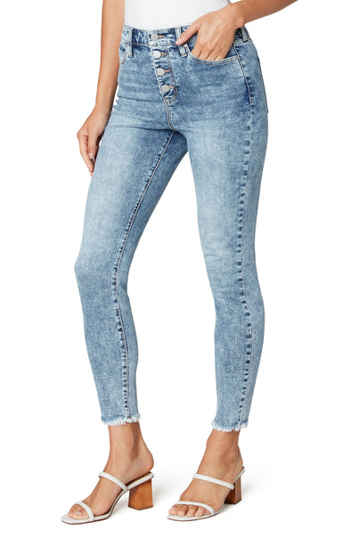 Acid Wash Button Front Skinny Jeans
