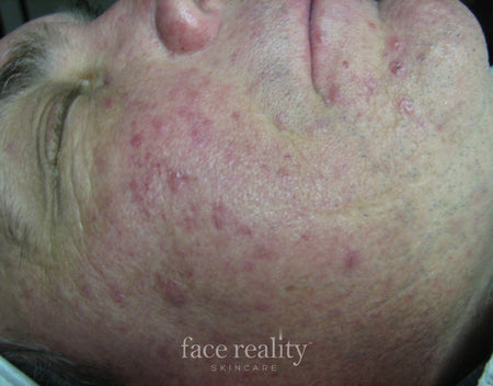 How to Get Rid of Acne Rosacea