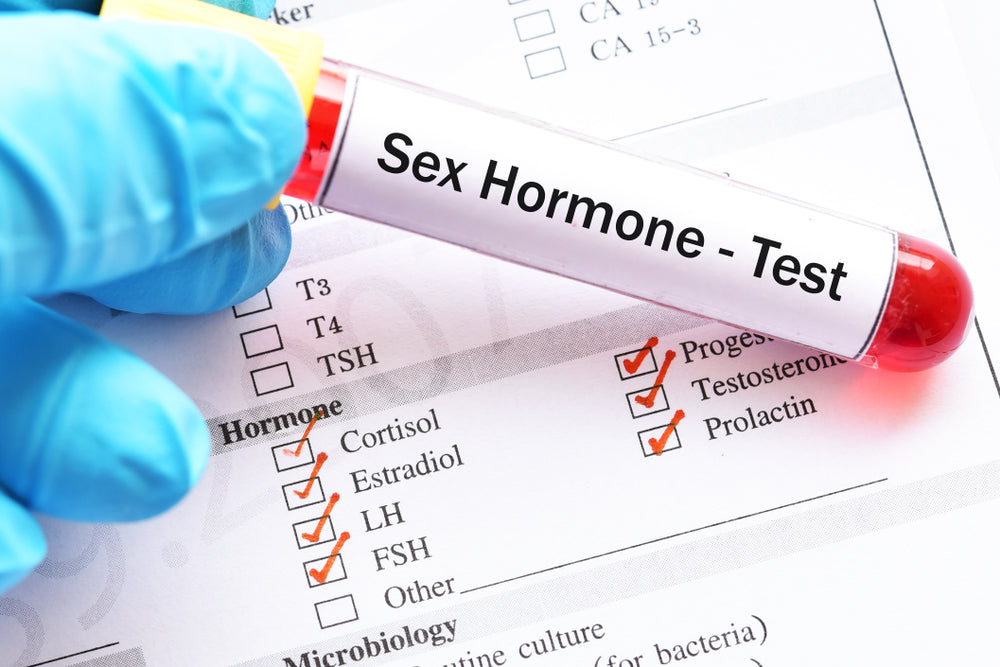 FSH Levels and Your Fertility