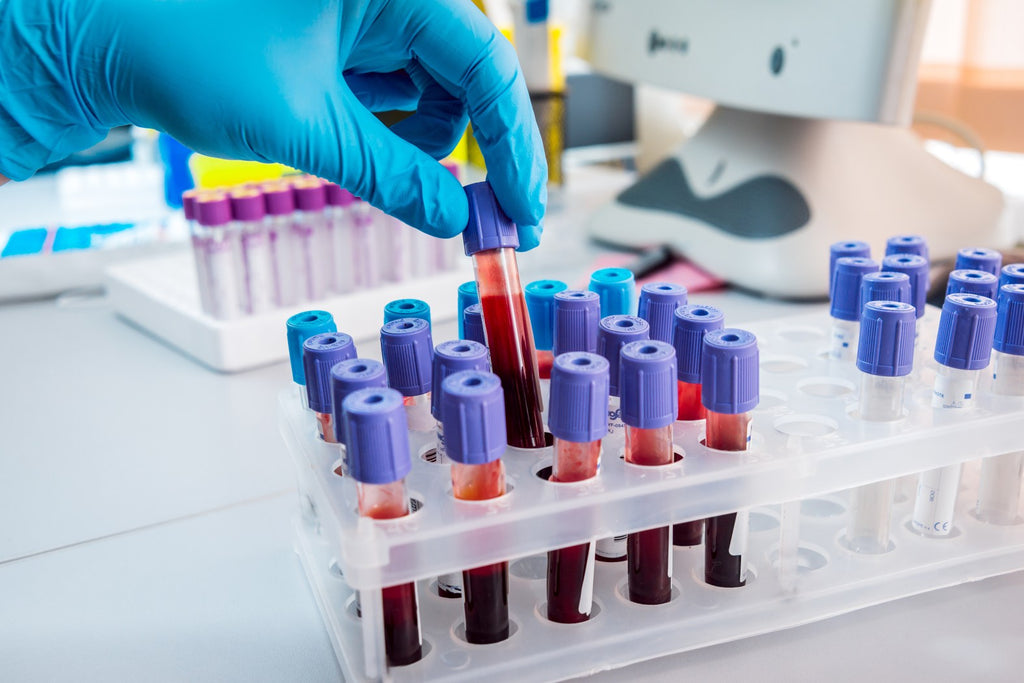 Red cell indices and how it can save your life