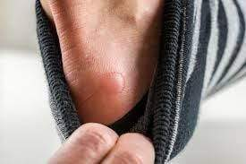 Foot Blisters: Causes and How To Prevent Them From Happening