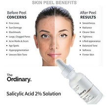 THE ORDINARY SALICYLIC ACID 2% SOLUTION 30M