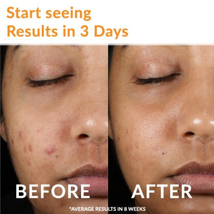 Acne Free Sensitive Skin 24 HR Acne Clearing System