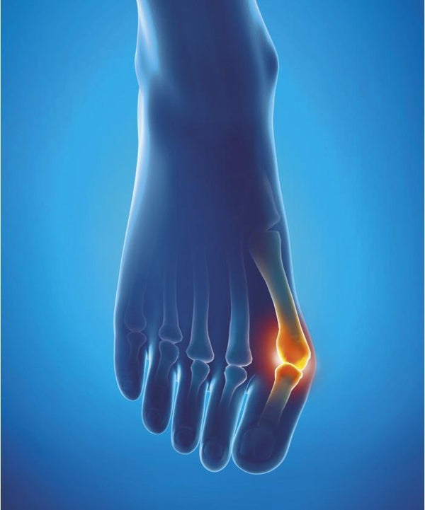 Epitact Protection For Hallux Valgus 1325-S