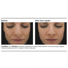 Load image into Gallery viewer, Intensive Clarity Treatment®: 0.5% Pure Retinol Night