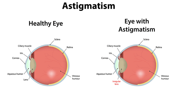 The difference between astigmatism