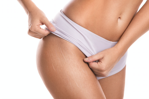 Female Hips With Stretch Marks