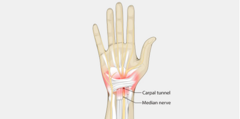 understand what is carpal tunnel syndrome and how can it affect your hand