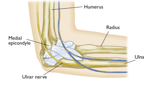 Close look of cubital tunnel Syndrome