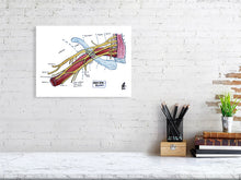Load image into Gallery viewer, Brachial Plexus