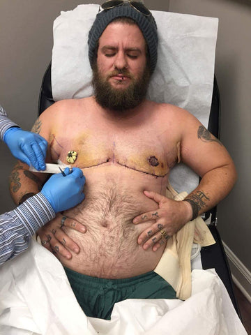 Getting drains removed after having a double incision mastectomy