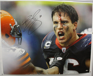 Brian Cushing Autographed Texans 24x30 Bloody Face Canvas- TriStar Authenticated
