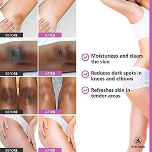 Underarm Whitening Cream Armpit Repair Cream Legs Knees Elbow Private Parts Body Whitening Cream Remove Melanin TSLM2