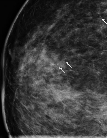 Moon and Lola - DCIS breast cancer x-ray