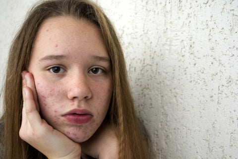teenager acne problems, solutions and treatments - teenagers akne fakte, lösungen und behandlung