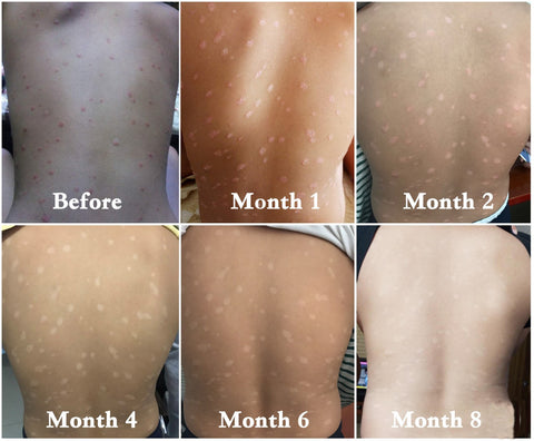 uv light therapy for psoriasis - uvb light therapy for eczema