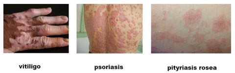 Best Treatment For Skin Disorder - Psoriasis Vitiligo and Eczema