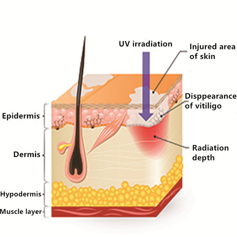 UV Irraditation - UVB Phototherapy Lamp