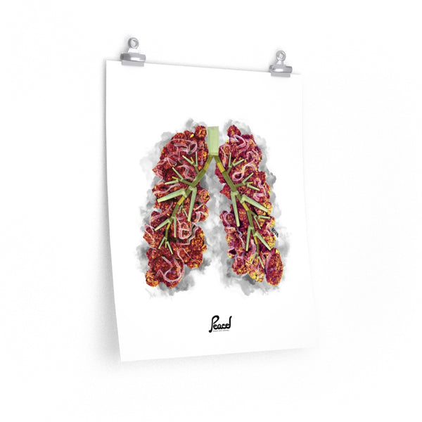 Chronic Bronchitis Matte Poster - White