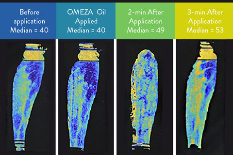 profusion thermographic imaging omega-3