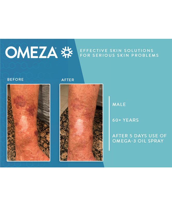 Omeza spray results skin strengthening topical omega3 supplement