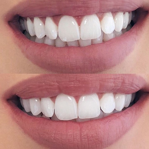 Best Veneers Walmart-True Smile Veneers teeth covers-Natural White