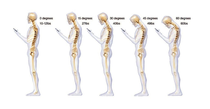 What causes bad posture