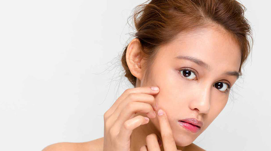 How to get rid of whiteheads, 7 ways to remove whiteheads