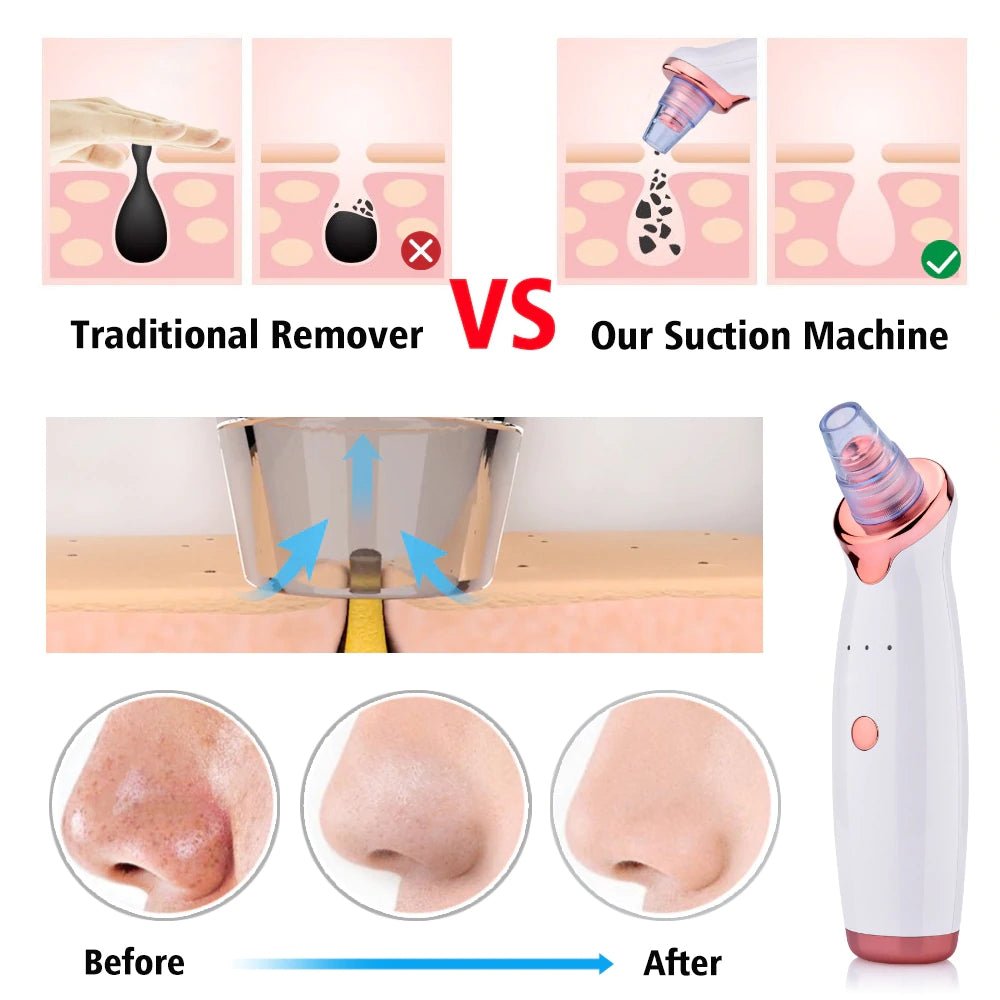 Electric Facial Vacuum Pore Cleaner Acne Blackhead Removal