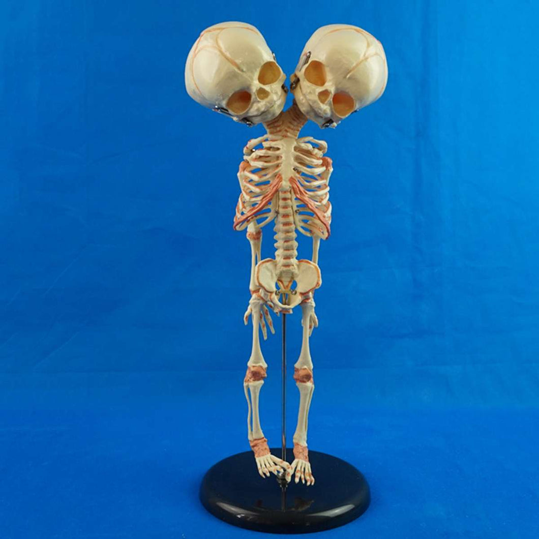Human Two Headed Baby Skeleton (37cm)