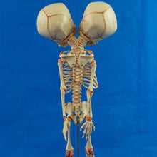 Load image into Gallery viewer, Human Two Headed Baby Skeleton (37cm)