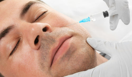 Dermal Filler for Nasolabial Folds