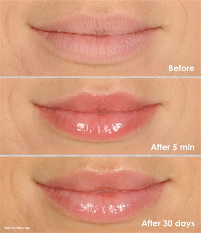 Magical Lip Plumper