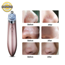 Electric Blackhead Acne Removal Vacuum With 4 Different Suction Function Heads