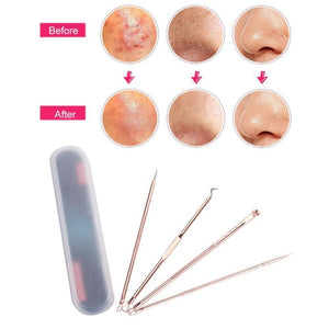 4Pcs Blackhead Acne Removal All In One Kit
