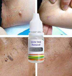 SKIN TAG REMOVER JOMELODY