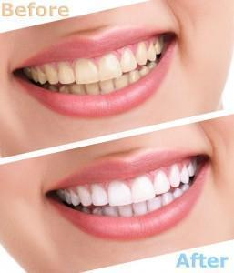 3D White Teeth Whitening Strips