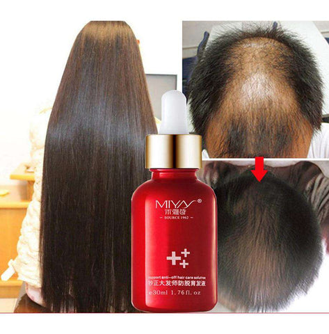 New 30ML Hair Growth Essence Oils Advanced Thinning Hair & Hair Loss Supplement Beauty Support Anti-off Hair Care Solution, Default title 0, www.suppashoppa.co.uk