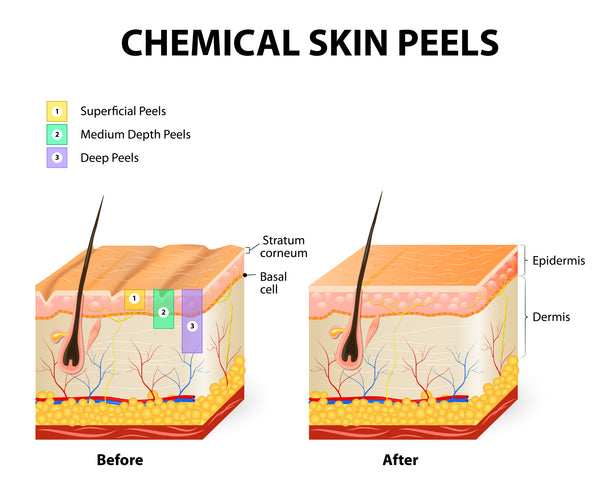chemical peels, chemical peel, lactic acid, glycolic acid, alpha hydroxy acids, face peels, goats milk skincare, skin care