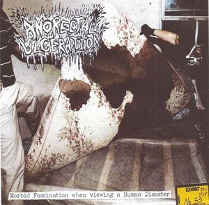 ANORECTAL ULCERATION - Morbid Fascination when …CD
