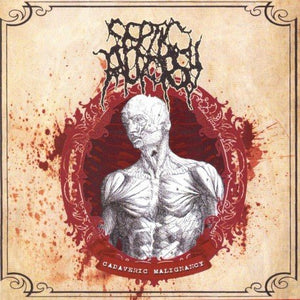 SEPTIC AUTOPSY - Cadaveric Malignancy CD