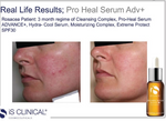 Load image into Gallery viewer, iS Clinical Super Serum Advance Plus