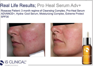 iS Clinical Super Serum Advance Plus