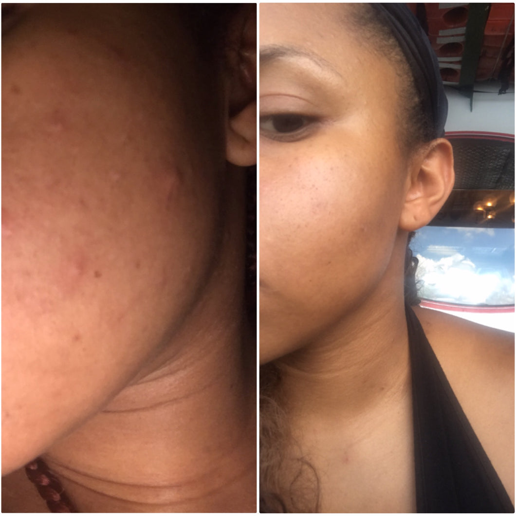 Fade your acne scars and marks in less than 3 weeks.
